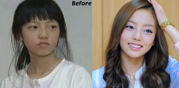Goo Ha-ra plastic surgery, korean celebrity plastic surgery before and after