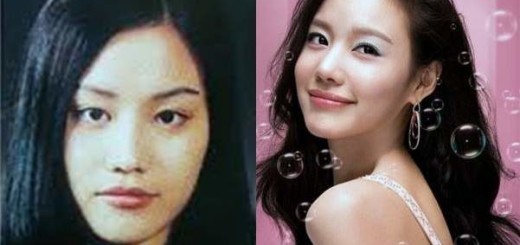 Top 10 Celebrities With Bad Plastic Surgery Photos