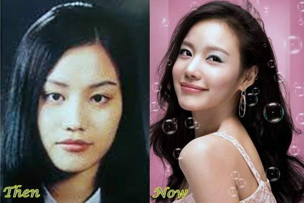 Kim A-joong plastic surgery, korean celebrity plastic surgery before and after