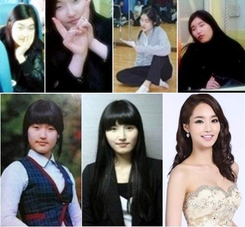 Best 5 Korean Plastic Surgery Before And ...
