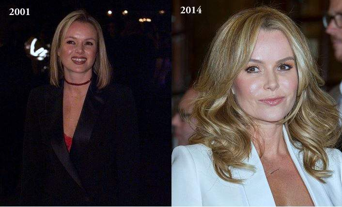 amanda holden plastic surgery, amanda holden photos, botox, face lift, amanda holden cosmetic surgery