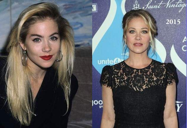 Christina Applegate Plastic Surgery Before And After Photos