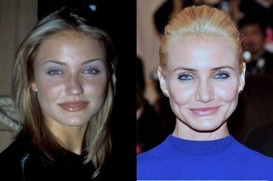 Cameron Diaz plastic surgery, Cameron Diaz photos, Cameron Diaz before after plastic surgery, breast implants, nose job, botox