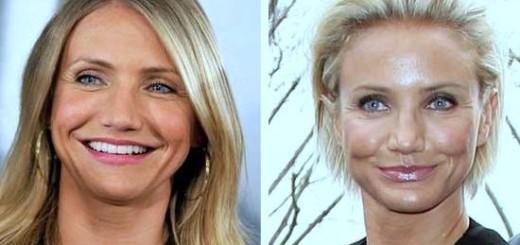 Cameron Diaz plastic surgery, Cameron Diaz photos, Cameron Diaz before after plastic surgery, breast implants, nose job, botox1