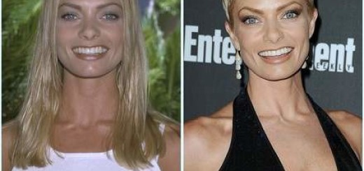 Jaime Pressly plastic surgery, Jaime Pressly breast implants, breast augmentation, Jaime Pressly photos, facelift, botox0