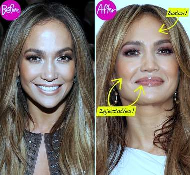 Jennifer Lopez plastic surgery, Jennifer Lopez botox, Jennifer Lopez plastic surgery before after photos, Jennifer Lopez photos0