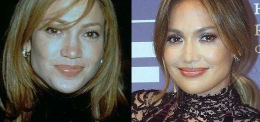 Jennifer Lopez plastic surgery, Jennifer Lopez botox, Jennifer Lopez plastic surgery before after photos, Jennifer Lopez photos1
