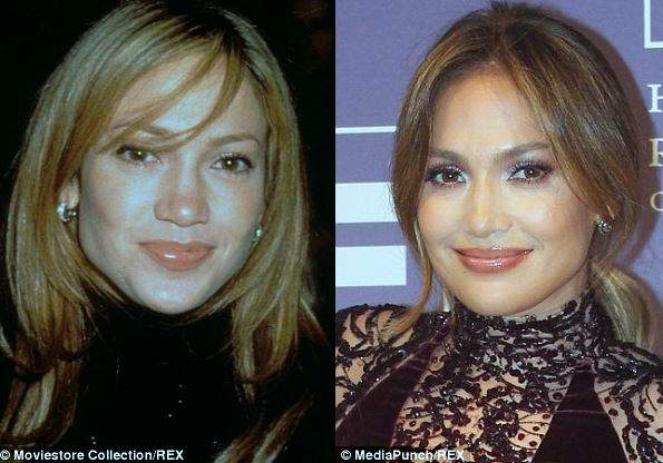 Jennifer Lopez plastic surgery, Jennifer Lopez botox, Jennifer Lopez plastic surgery before after photos, Jennifer Lopez photos1