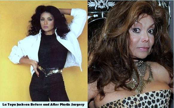 La Toya Jackson plastic surgery, La Toya Jackson photos, La Toya Jackson cosmetic surgery, La Toya Jackson breast implants, breast augmentation, botox, cheek implants, liposuction