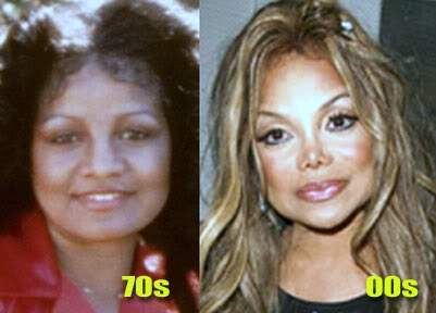 La Toya Jackson plastic surgery, La Toya Jackson photos, La Toya Jackson cosmetic surgery, La Toya Jackson breast implants, breast augmentation, botox, cheek implants, liposuction1