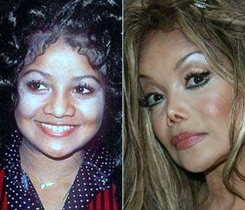 La Toya Jackson plastic surgery, La Toya Jackson photos, La Toya Jackson cosmetic surgery, La Toya Jackson breast implants, breast augmentation, botox, cheek implants, liposuction2