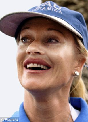 Melanie Griffith plastic surgery, Melanie Griffith photos, Melanie Griffith cosmetic surgery, lip fillers, botox, Melanie Griffith lion scar