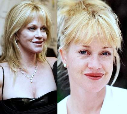 Melanie Griffith plastic surgery, Melanie Griffith photos, Melanie Griffith cosmetic surgery, lip fillers, botox, Melanie Griffith lion scar0