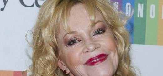 Melanie Griffith plastic surgery, Melanie Griffith photos, Melanie Griffith cosmetic surgery, lip fillers, botox, Melanie Griffith lion scar2