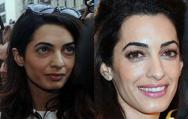 Amal Clooney Plastic Surgery Before And After Photos