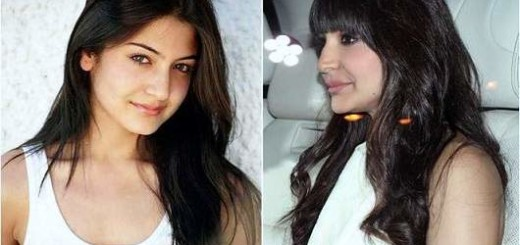 anushka sharma plastic surgery, anushka sharma lip injection, anushka sharma photos, bollywood plastic surgery before and after photos
