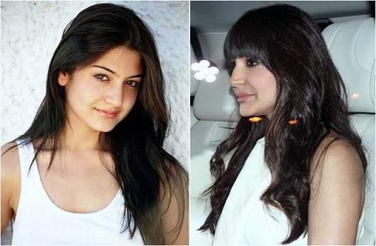 anushka sharma plastic surgery, anushka sharma lip injection, anushka sharma photos, bollywood plastic surgery before and after photos