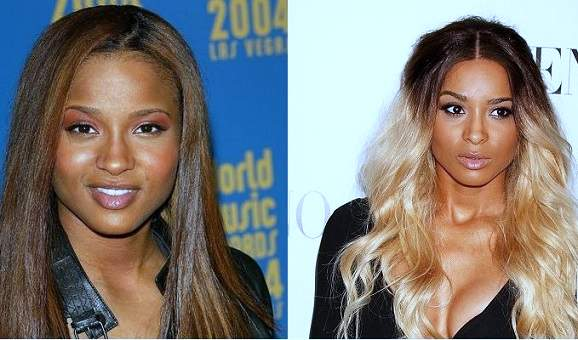 ciara nose job, ciara breast implants, ciara photos, ciara plastic surgery, ciara cosmetic surgery, ciara before after photos