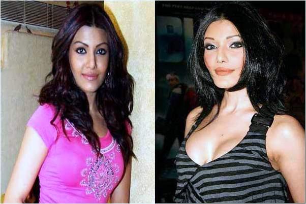 koena mitra plastic surgery, koena mitra photos, bollywood plastic surgery before and after photos
