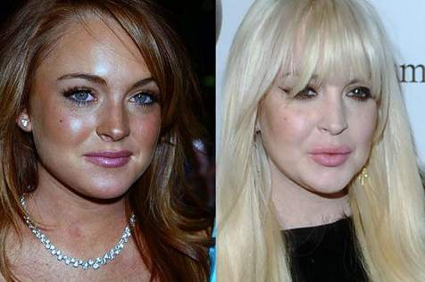 lindsay lohan plastic surgery, lindsay lohan photos, lindsay lohan cosmetic surgery, botox, dermal fillers, lip injection
