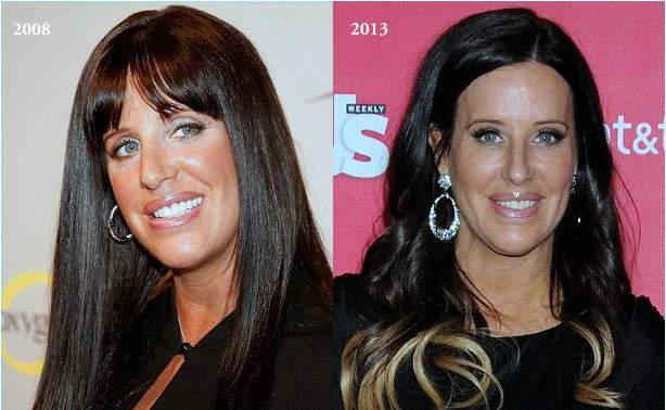 patti stanger plastic surgery, patti stanger cosmetic surgery, patti stanger before after photos, patti stanger photos, breast implants, breast reduction, botox