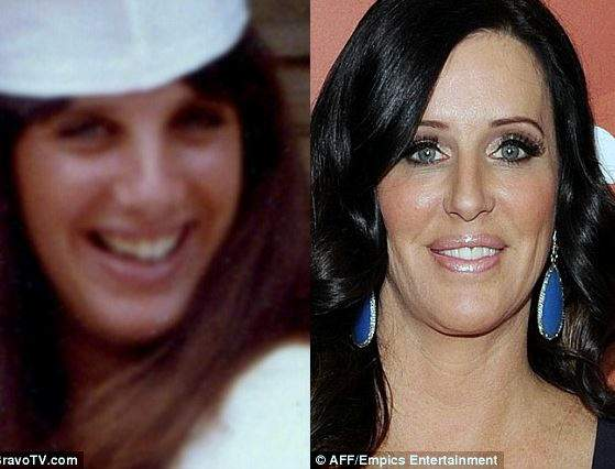 patti stanger plastic surgery, patti stanger cosmetic surgery, patti stanger before after photos, patti stanger photos, breast implants, breast reduction, botox0