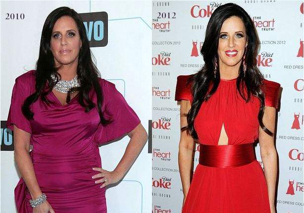 patti stanger plastic surgery, patti stanger cosmetic surgery, patti stanger before after photos, patti stanger photos, breast implants, breast reduction, botox1