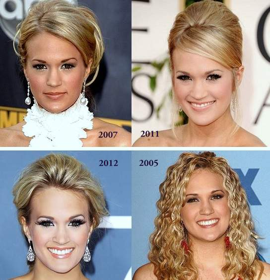 Carrie Underwood plastic surgery, Carrie Underwood nose job, botox, Carrie Underwood photos