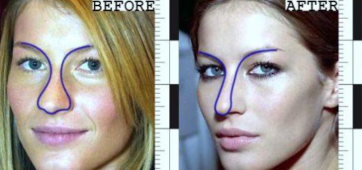 gisele-bundchen-plastic-surgery-gisele-bundchen-breast-implants-gisele-bundchen-photos-nose-job-gisele-bundchen-cosmetic-surgery0
