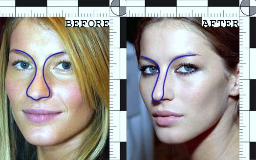 gisele-bundchen-plastic-surgery-gisele-bundchen-breast-implants-gisele-bundchen-photos-nose-job-gisele-bundchen-cosmetic-surgery0