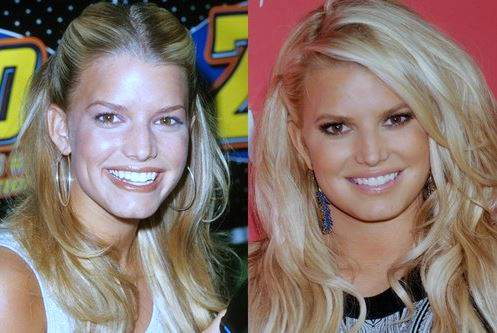 Jessica Simpson plastic surgery, Jessica Simpson nose job, lip job, Jessica Simpson before after photos