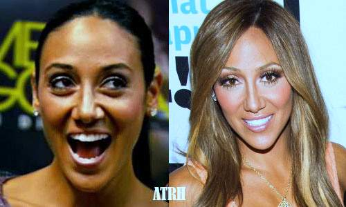 Melissa Gorga plastic surgery, Melissa Gorga breast implants, nose job, botox, lip fillers, cheek fillers, melissa gorga beauty secrets2