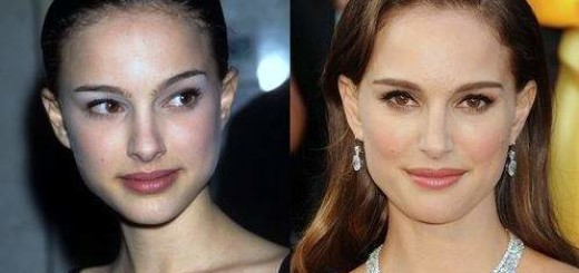 Natalie Portman plastic surgery, Natalie Portman photos, Natalie Portman nose job, Natalie Portman before after plastic surgery photos