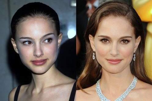 Natalie Portman plastic surgery, Natalie Portman photos, Natalie Portman nose job, Natalie Portman before after plastic surgery photos