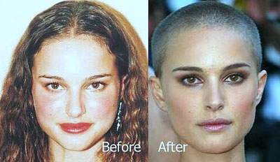Natalie Portman plastic surgery, Natalie Portman photos, Natalie Portman nose job, Natalie Portman before after plastic surgery photos1