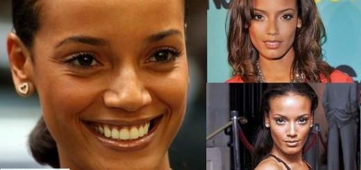 Selita Ebanks plastic surgery, Selita Ebanks photos, Selita Ebanks breast implants, nose job, Selita Ebanks cosmetic surgery