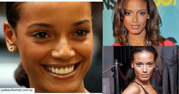 Selita Ebanks plastic surgery, Selita Ebanks photos, Selita Ebanks breast implants, nose job, Selita Ebanks cosmetic surgery