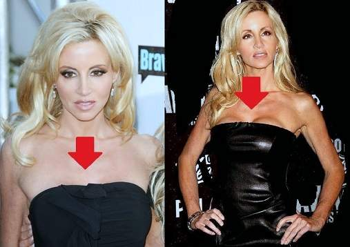 Camille Grammer photos, Camille Grammer plastic surgery, Camille Grammer breast implants, botox, without makeup, before after photos1