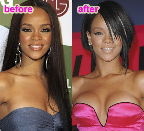 Rihanna plastic surgery, Rihanna nose job, rhinoplasty, breast implants, before after photos, Rihanna before after photos, Rihanna photos1
