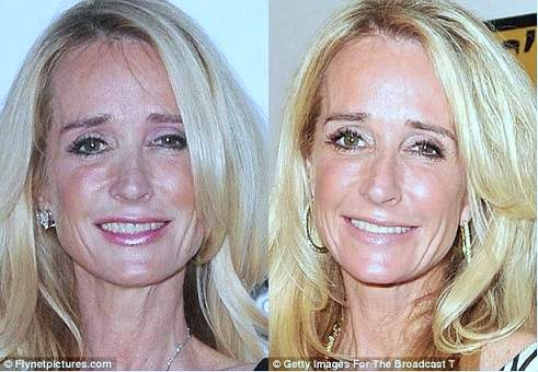 kim richards plastic surgery, kim richards photos, kim richards nose job, breast implants, botox, kim richards before after photos0
