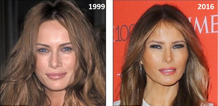melania-trump-plastic-surgery-melania-trump-plastic-surgery-before-after-photos-melania-trump-squinty-eyes-breast-augmentation-nose-job