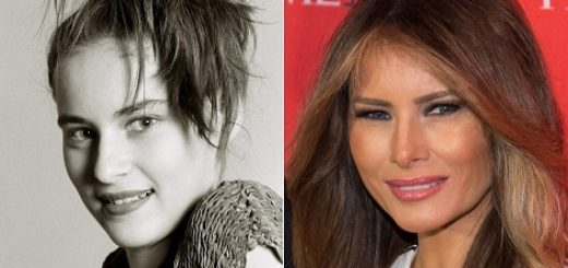 melania-trump-plastic-surgery-melania-trump-plastic-surgery-before-after-photos-melania-trump-squinty-eyes-breast-augmentation-nose-job1