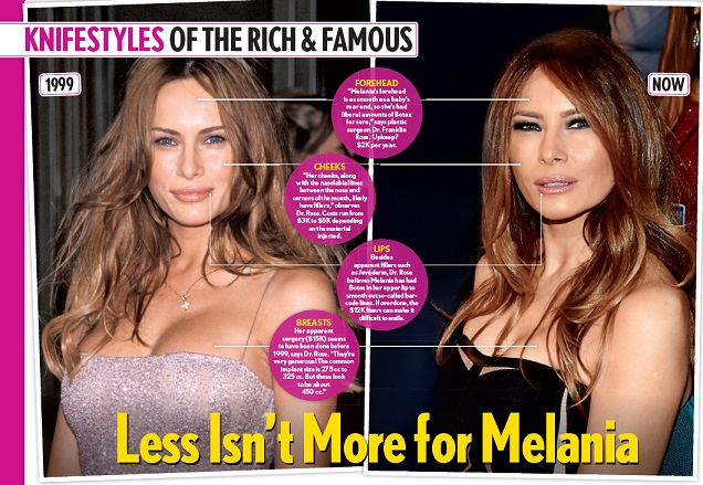 melania-trump-plastic-surgery-melania-trump-plastic-surgery-before-after-photos-melania-trump-squinty-eyes-breast-augmentation-nose-job2