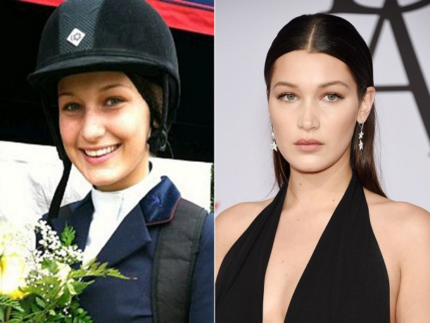 bella-hadid-plastic-surgery-bella-hadid-plastic-surgery-before-after-photos-bella-hadid-nose-job-lip-fillers1