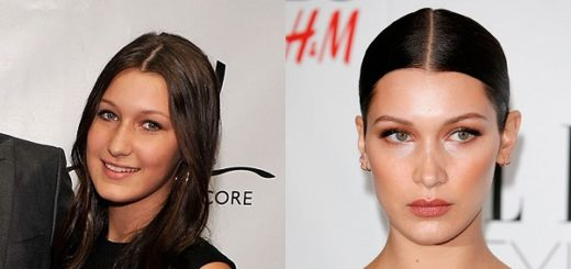 bella-hadid-plastic-surgery-bella-hadid-plastic-surgery-before-after-photos-bella-hadid-nose-job-lip-fillers2