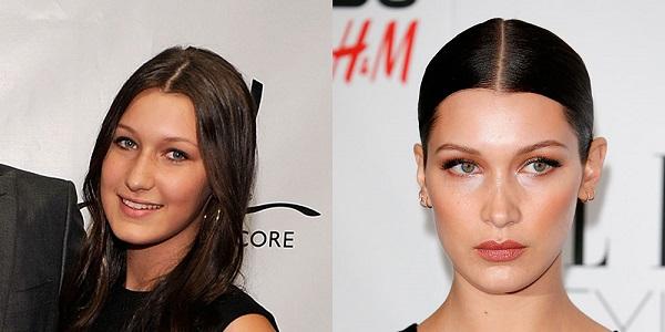 bella-hadid-plastic-surgery-bella-hadid-plastic-surgery-before-after-photos-bella-hadid-nose-job-lip-fillers2