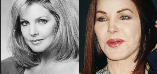 priscilla-presley-plastic-surgery-priscilla-presley-plastic-surgery-before-after-photos-priscilla-presley-facelift-priscilla-presley-plastic-surgery-nightmare1