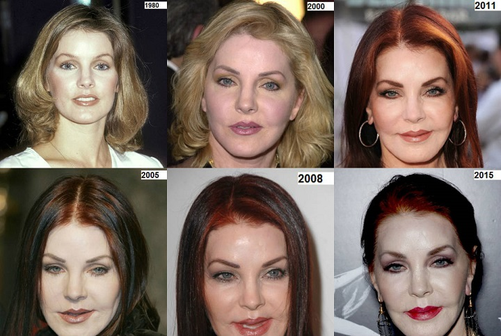 priscilla-presley-plastic-surgery-priscilla-presley-plastic-surgery-before-after-photos-priscilla-presley-facelift-priscilla-presley-plastic-surgery-nightmare2