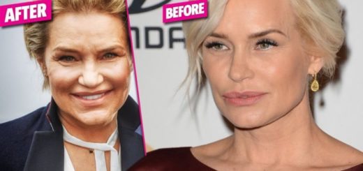 yolanda-hadid-plastic-surgery-yolanda-hadid-breast-implants-yolanda-hadid-nose-job-yolanda-hadid-lyme-disease-yolanda-hadid-plastic-surgery-before-after-photos1