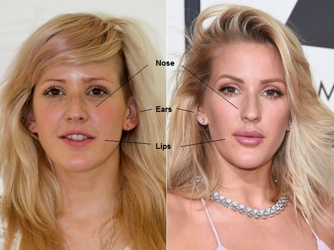 Ellie Goulding Plastic Surgery Before And After Photos
